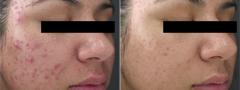 JM acne före o under läkning
