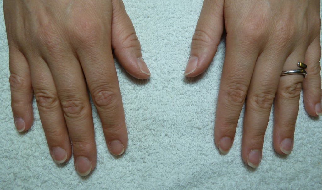 naglar före